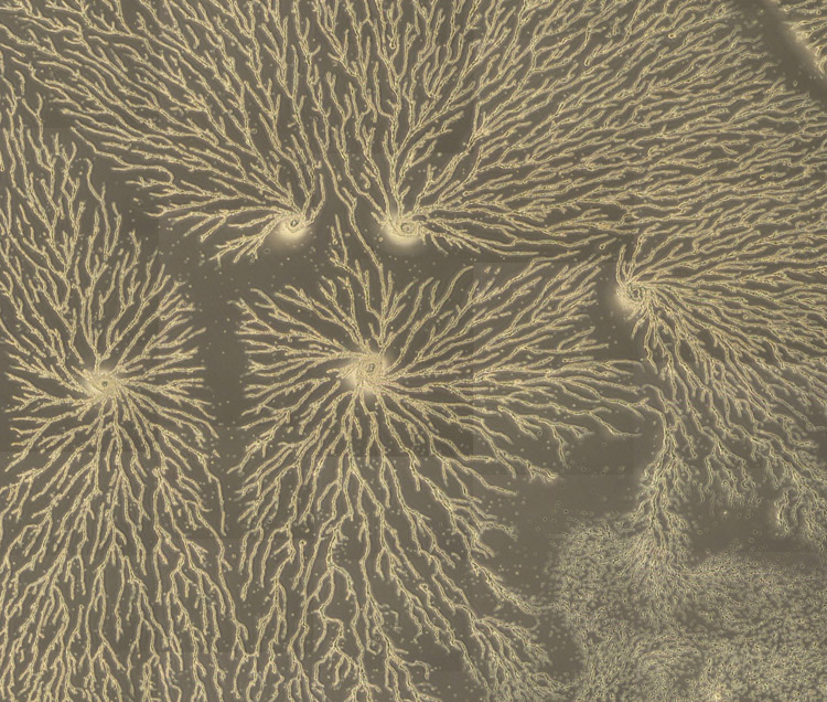 Phase constrast image of a large field of aggregating Dictyostelium cells.